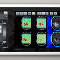 BrainLAB's Digital Lightbox Is Like A Giant iPhone For X-Rays