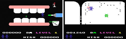 Tooth Invaders (C64) (Images courtesy C64.com)