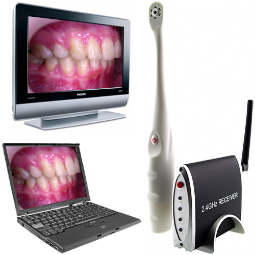Wireless Dental Camera (Images courtesy Chinavasion)
