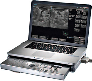 Terason t3200 Ultrasound System Breast Series (Image courtesy Terason)