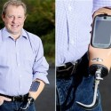 Smartphone Right Into His Prosthetic Arm Is What This Man Did
