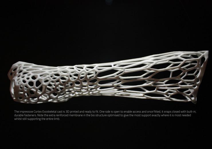 cortex-cast-1