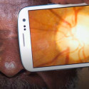 New Application Uses Smartphones To Give Eye Exams