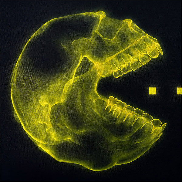 PacMan-XRay